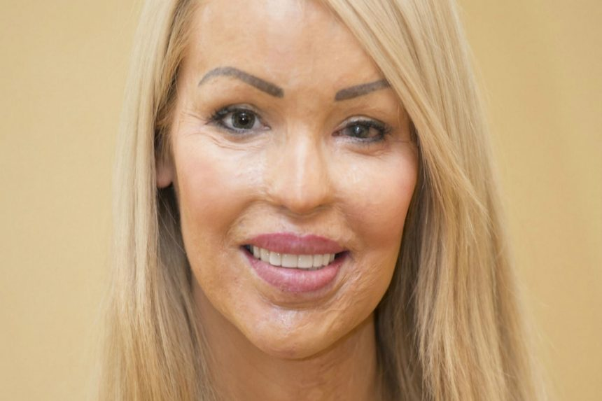 Katie Piper and a love that bites