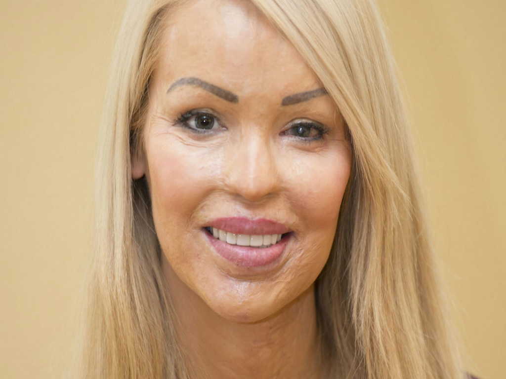 Katie Piper and a love that bites - Magazine Pelle al vegetale